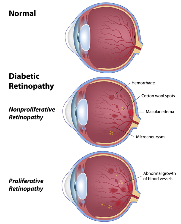 Diabetic Retinopathy Aransas Pass